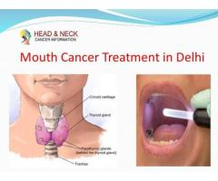Mouth Cancer Doctor in Delhi