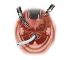 Trans Oral Robotic Surgeon in Noida