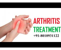 +91-8010931122 ayurvedic treatment for arthritis in DLF Phase 1 Gurgaon