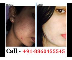 Best Skin Specialist Clinic in Aunrihar || 8860455545