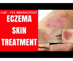 Call :: 8860455545 :: Eczema skin treatment in Pipraich