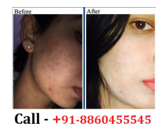 PH : 8860455545 : best dermatologist in Ramnath Deoria