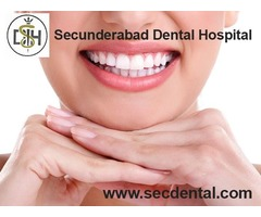 Dental clinics in Secunderabad | Secdental